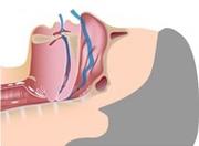 Apnée du sommeil - obstruction de la respiration