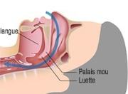 Apnée du sommeil - respiration normale