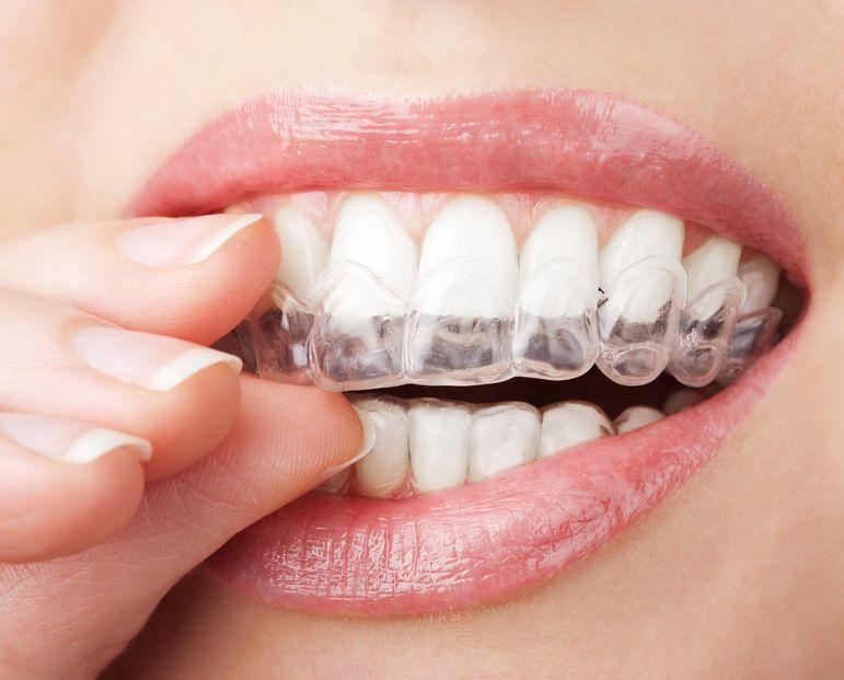 Gouttière - blanchir ses dents