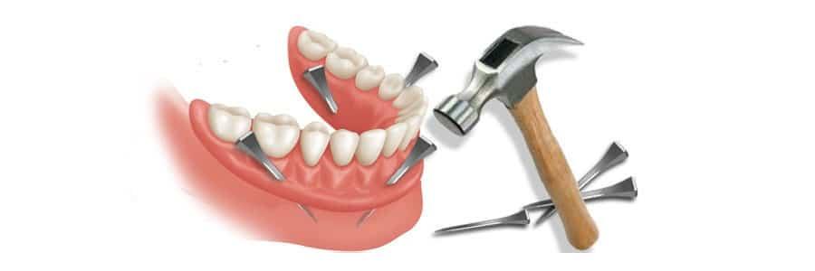 Prothèse dentaire inférieure instable