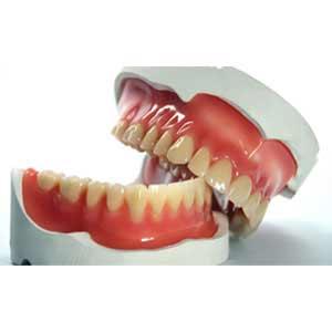 Qu'est-ce qu'un prothèse dentaire