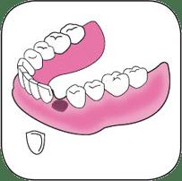 Réparation d'une dent cassée ou décollée