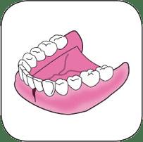 Réparation de prothèse dentaire avec une fissure