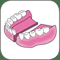 Réparation de prothèse dentaire supérieure fracturée en deux parties