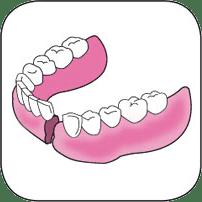 Réparation d'une fracture sur une prothèse dentaire inférieure