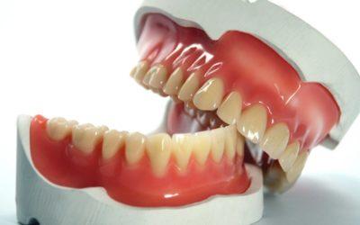 Qu'est-ce qu'une prothèse dentaire: Une définition