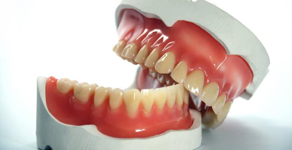Prothèse dentaire économique - prothèse dentaire standard