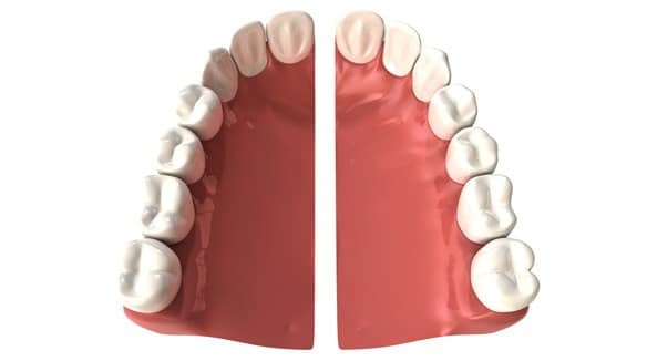 Réparation prothèse dentaire - prothèse brisée - urgence